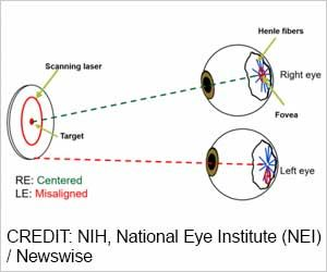 Novel Vision Screening Device can Improve Detection of Lazy Eye