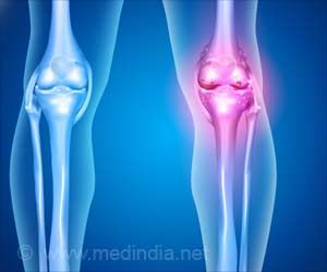 Bone Marrow Failure Due To Various Causes Now Predicted