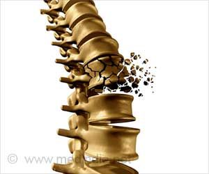 Vertebral Fractures Common in COVID-19 Patients