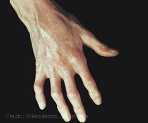 Boosting a Specific Nutrient may Help Treat Scleroderma