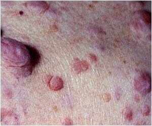 Dermatological Skin Disorder Which Is Itchy, More Prevalent Than Believed