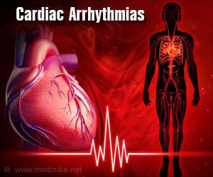 Arrhythmia can be Prevented by a Specific Compound
