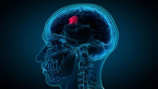 Novel Tx Helped Man With Recurrent Brain Tumor