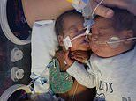 Mother of premature twins claims the stronger boy saved his brothers life with a CUDDLE