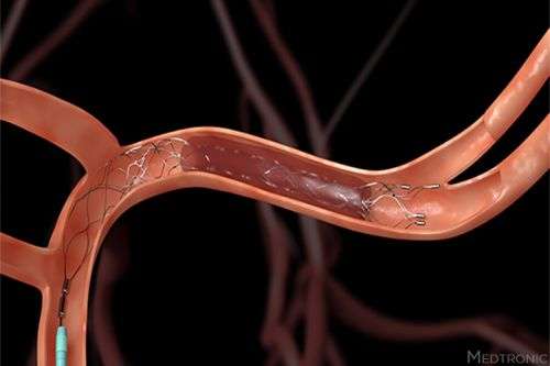 Endovascular Stroke Tx: Watch Out for Contrast-Induced Brain Swelling