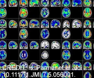 Artificial Intelligence Helps in Early Diagnosis of Alzheimer's