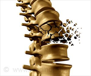 New Drug Target To Reverse Osteoporosis in Mice