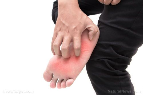 7 home remedies that may help treat athlete's foot