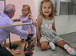 Toddler 'was born with BACKWARDS LEGS' due to a one-in-a-million birth defect