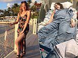 Student, 20, who dismissed her headache as a hangover had meningitis and blood poisoning
