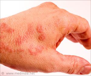 Eczema Affected Children Could Develop Health Index Using Skin's Microbiome
