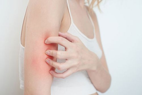 Study: Excess iron may increase your risk of developing bacterial skin infections