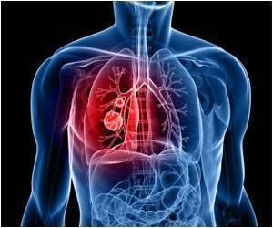 New 3D 'Lung-On-A-Chip' Model Helps Test New Therapies for Covid-19