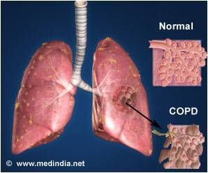 Novel Healthcare App Decreases COPD Symptoms