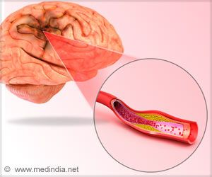 New Insight into Treatment of Stroke and Seizure