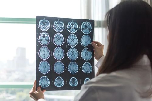 Stroke More Likely in COVID-19 Than Flu Patients