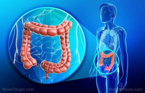 A promising candidate for a colorectal cancer cure may be in this TCM capsule