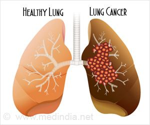 The Growth of Lung Tumors Reduced