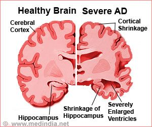 Targeting Beta-amyloid in Its Dynamic State may Treat Alzheimer's Disease