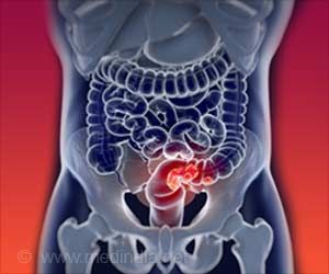 Common Blood Pressure Drugs may Down Colorectal Cancer Risk