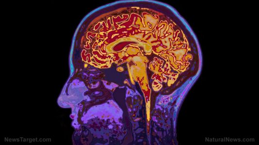 Study: PQQ may prevent and even reverse Alzheimer's