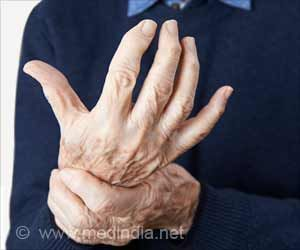New Research Finds If Rheumatoid Arthritis Patients Respond to Treatment
