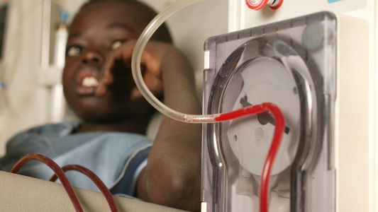 Donor Kidneys Further Out of Reach for Kids Regardless of Race