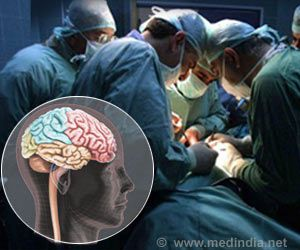 Major Surgery May Increase The Risk Of Alzheimer's Disease
