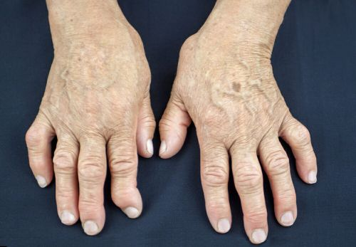 Arthritis: Fibrin Deposits & Enzyme Deficiency