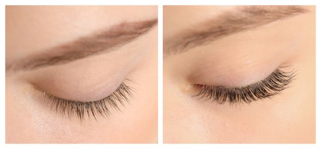 Is Latisse™ Eyelash Treatment Right For You?