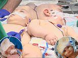 California twin girls, 9 months, conjoined at the HEAD are successfully separated