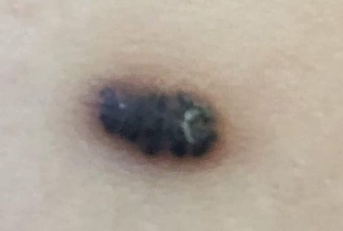 We Had A Melanoma Scare With My Son
