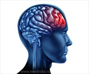 Preventing Brain Damage After TBI Using a Novel Therapy