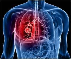 Lung Cancer Incidence Higher in Women Than Men