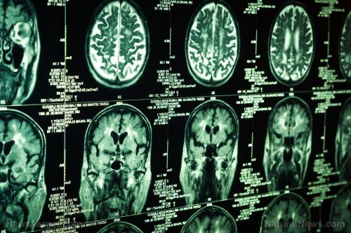 Researchers discover a compound in evodia that can potentially be used for glioblastoma cancer treatments