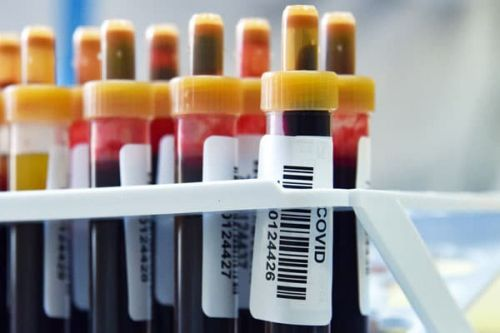 I Took The COVID-19 Antibody Test, And Here's What It Was Like