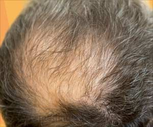 Hair Loss Linked To Severity of COVID-19 in Men