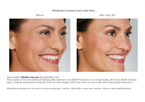Our Med Spa: Injectables