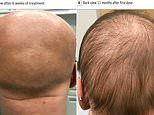 Incredible transformation of 13-year-old alopecia patient