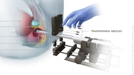 No More Men Need to Die From Transrectal Prostate Biopsies