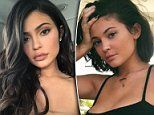 Plastic surgeon on how Kylie Jenner's lip fillers are dissolved