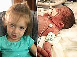 Minnesota girl, 1, thriving after surgery in the WOMB to remove a spinal tumor
