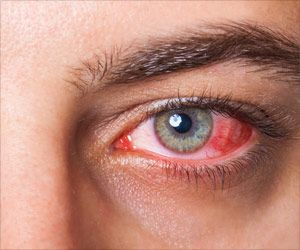Red Eye Medical Assessment During COVID-19 Outbreak
