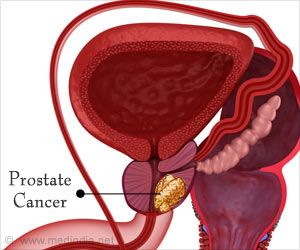 Computer Model Predicts the Course of Disease in Prostate Cancer