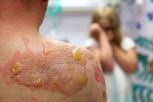 Children ending up in hospital with serious burns thanks to new social media craze