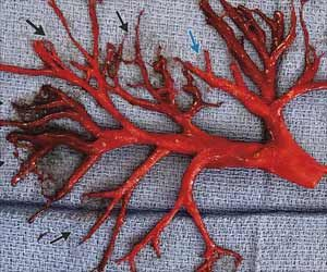 COVID-19 May Trigger Recurrence of Fatal Blood Clots in Arms