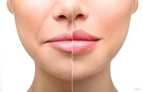 3 Ways Facial Fillers and Injectables Help Skin Flourish