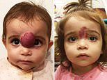 Toddler, one, with facial tumor that was covering her eye undergoes surgery to remove it in the US