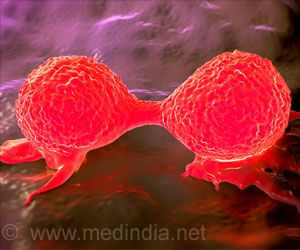 New Strategy to Reduce Breast Cancer Bone Metastasis Discovered