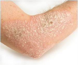 Atopic Dermatitis - Ready for a Transformative Phase!